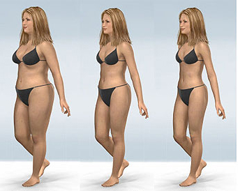Body Lift Surgery India Cost Body Lift Surgery Kolkata India
