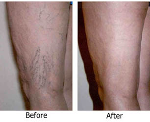 varicose vein removal cost
