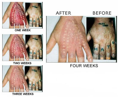 Tattoo Removal Surgery India, Price Tattoo Removal Surgery Mumbai India,