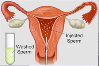 Artificial Insemination Cost Breakdown for Treatment