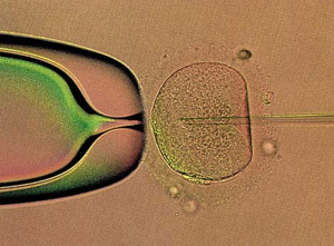 Best IVF Clinics in India