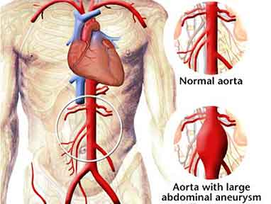 Aortic Aneurysm Surgery India, Price Aortic Aneurysm Surgery Mumbai, Cost Aortic Aneurysm, Aortic Aneurysm Surgery Delhi India, Best Aortic Aneurysm Surgery Hospital India, India Aortic Aneurysm Surgery Hospital India