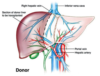 Liver Transplant Surgery India, Price Liver Transplant Bangalore India, Cost Liver Transplant, Liver Transplant Surgery Recovery, Liver Transplant Surgery Risk, Liver Transplant Surgery Procedure, Liver Transplantation, Liver Transplant Cost, Liver Transplant Donor