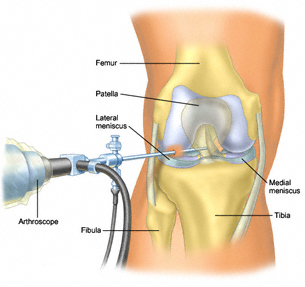 Knee Surgery in India